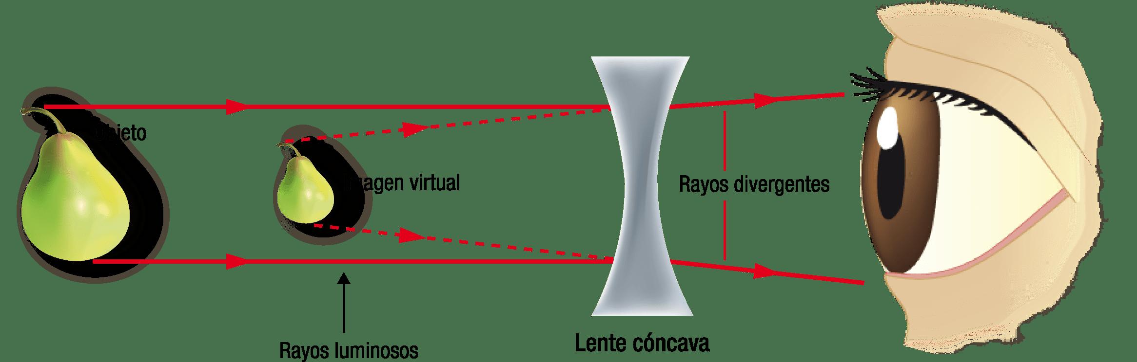 Figura34